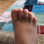 子供の内反小趾の足
